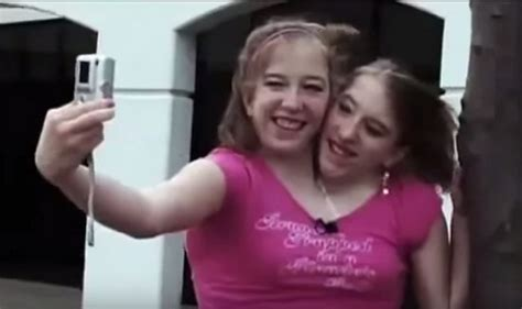 30 Interesting Things About Famous Conjoined Twins Abby