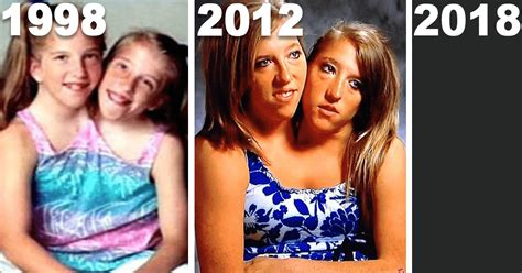 What Conjoined Twins Abby And Brittany Hensel Look Like